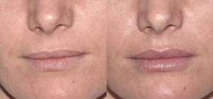 Restylane lip silk copy