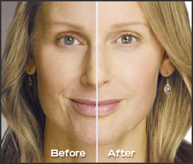 juvederm_xc_dermal_fillers_houston_img_021