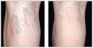 leg-veins