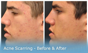 acne-scarring-image-gallery1