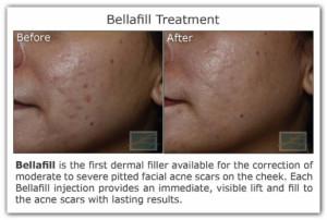 bellafill acne
