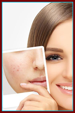 Acne and Scarring in Simi Valley, CA